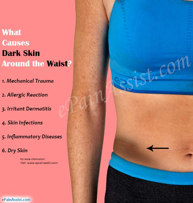 what-causes-dark-skin-waist
